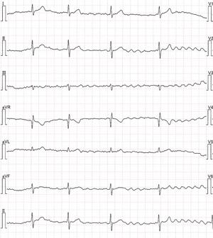 心房 発作 動 性 細 心房細動の原因とは